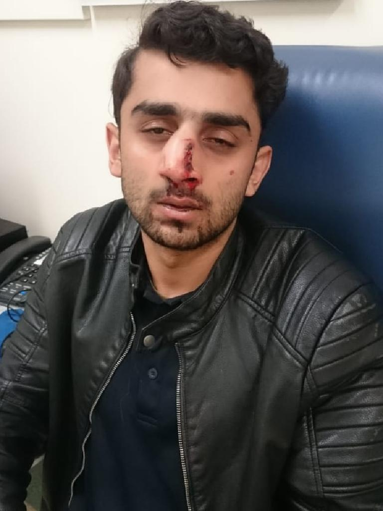 Abdullah Qaiser, 20, was left with a broken nose when he was beaten on campus on Saturday night. Picture: Supplied