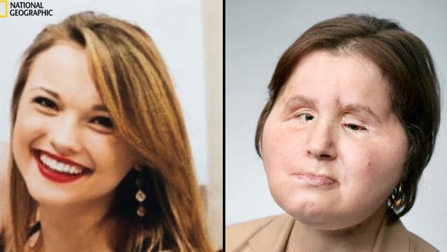 Katie Stubblefield had a face transplant after a failed suicide attempt. Picture: Courtesy of the Stubblefield Family; Martin Schoeller