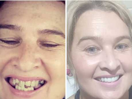 Michelle Champness before and after her $20,000 smile.