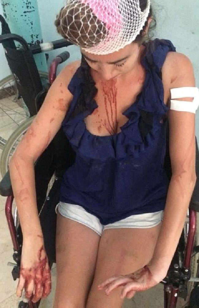 British tourist Laura Denmar said staff at a hostel in Split, Croatia beat her with a metal pole.