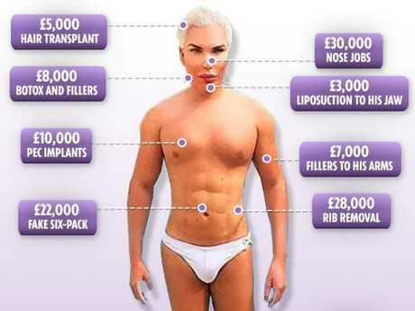 Just some of the surgery Rodrigo has undergone.