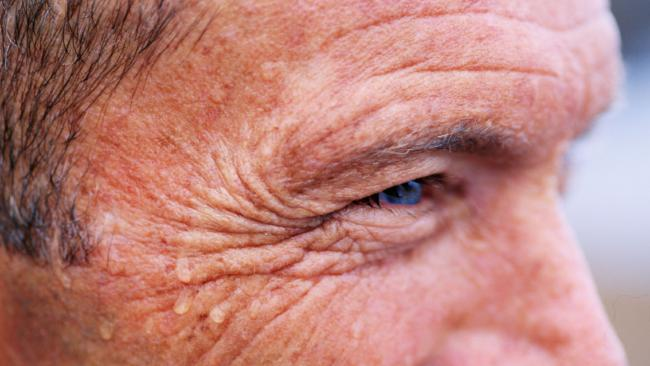 Wrinkles could indicate health problems in the future, according to a new study.
