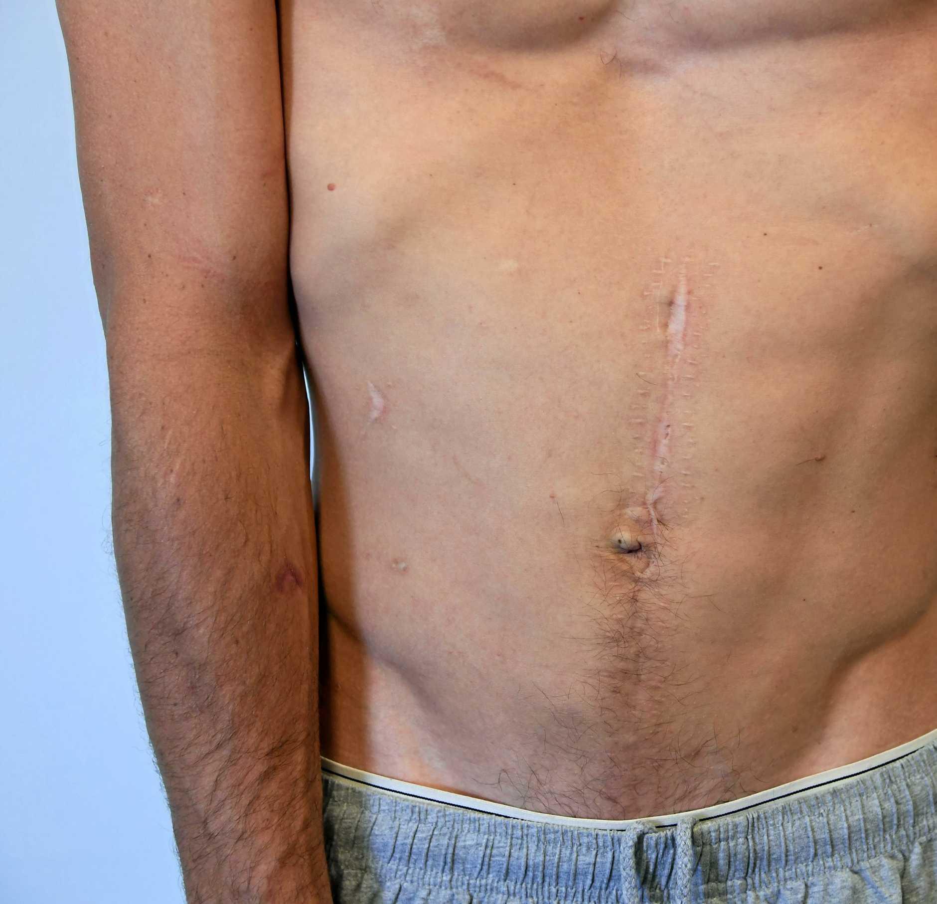 Stomach scar.