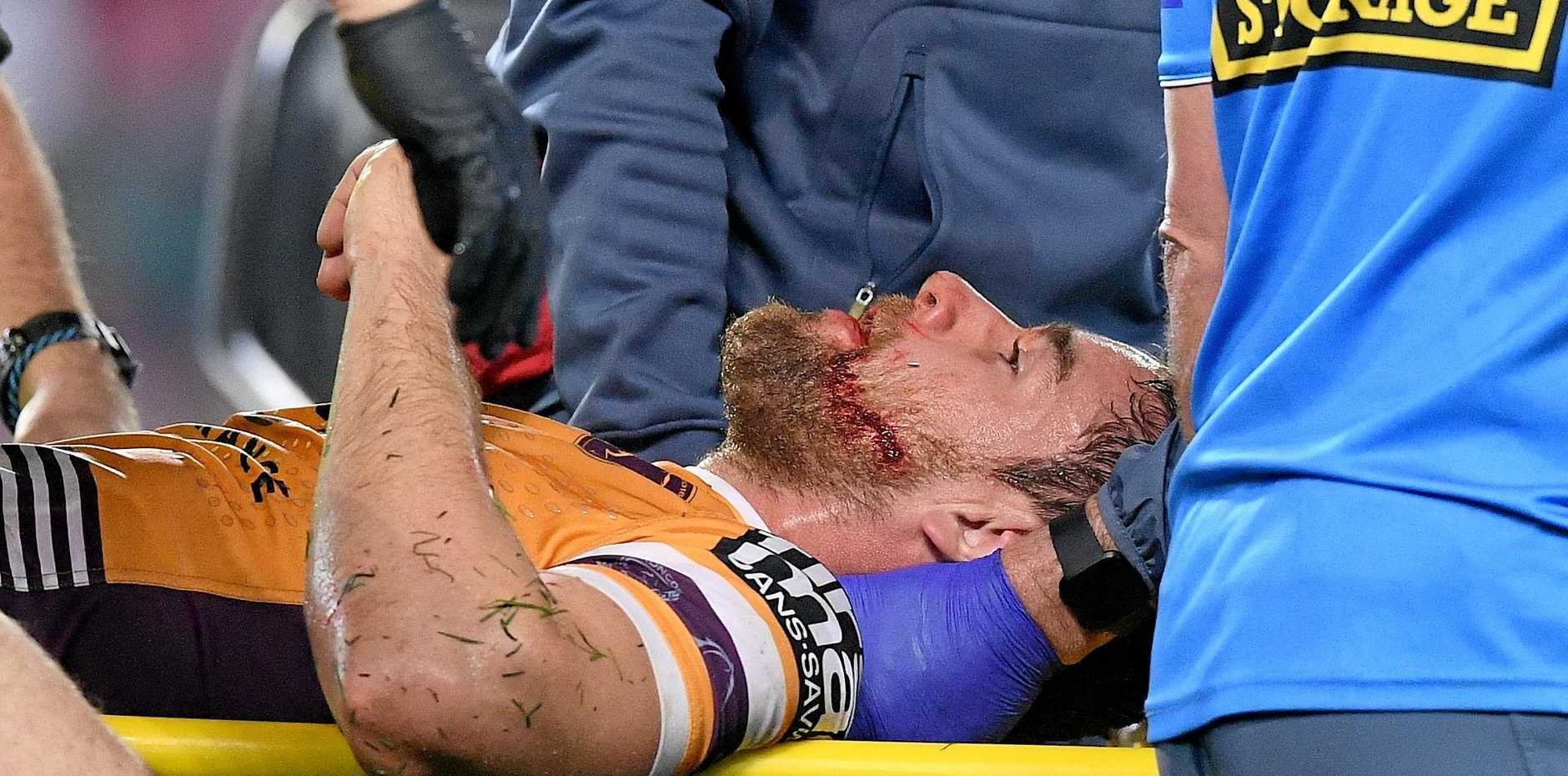 The Broncos' Andrew McCullough is stretchered from the field after a hit from the Roosters' Dylan Napa in round 24. Picture: Dan Himbrechts/AAP