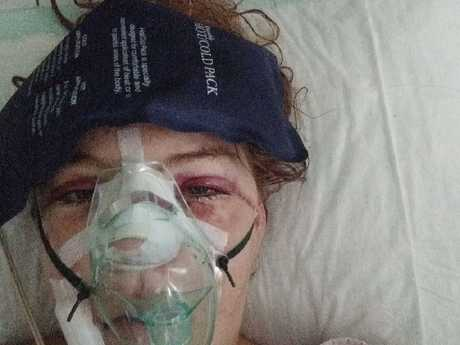 Ms Eno fractured her wrist, cheekbones and nose. Picture: GoFundMe