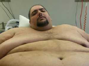 Obese man begins fight of his life