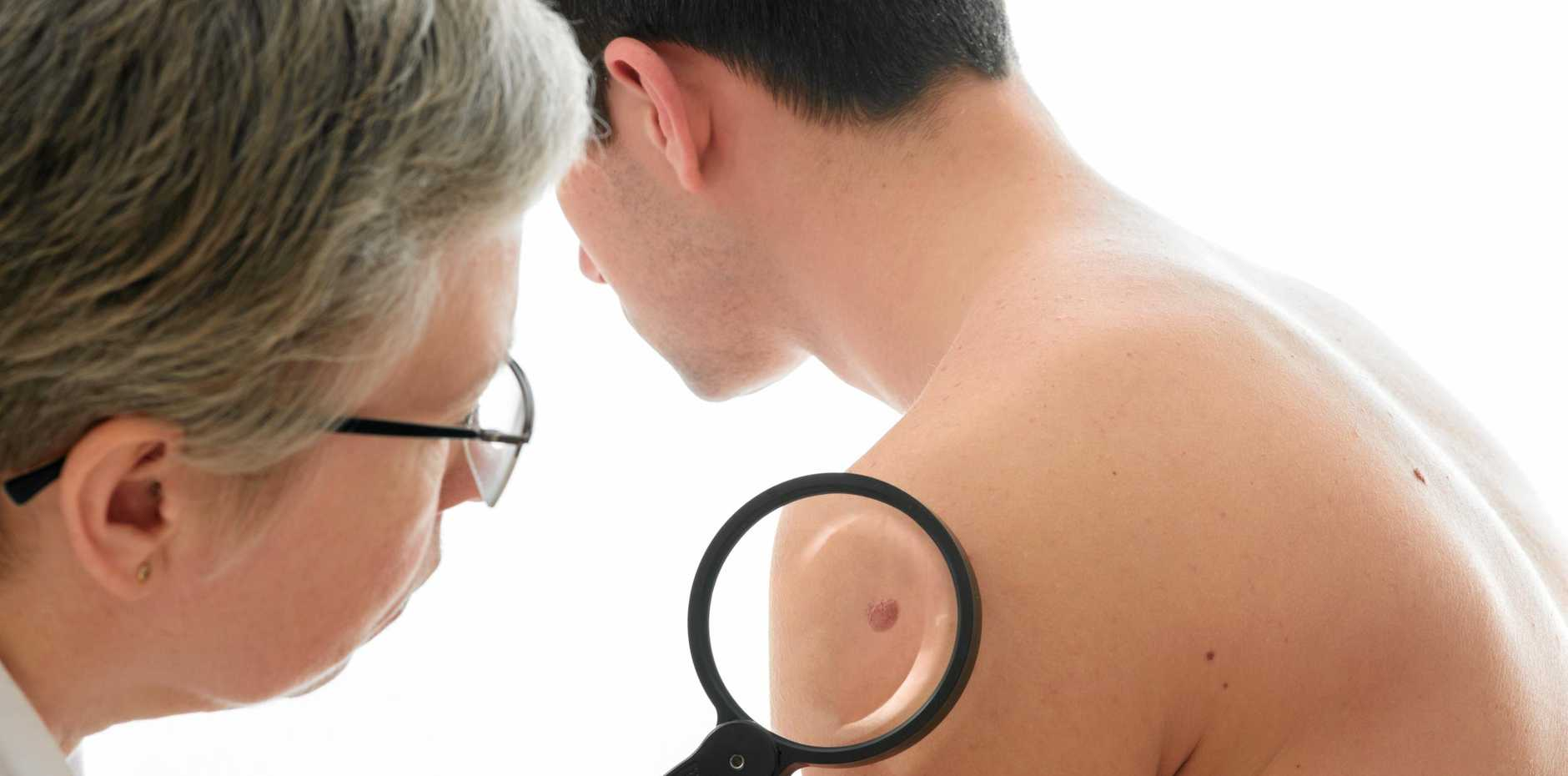 Dermatologist examines a mole of male patient
