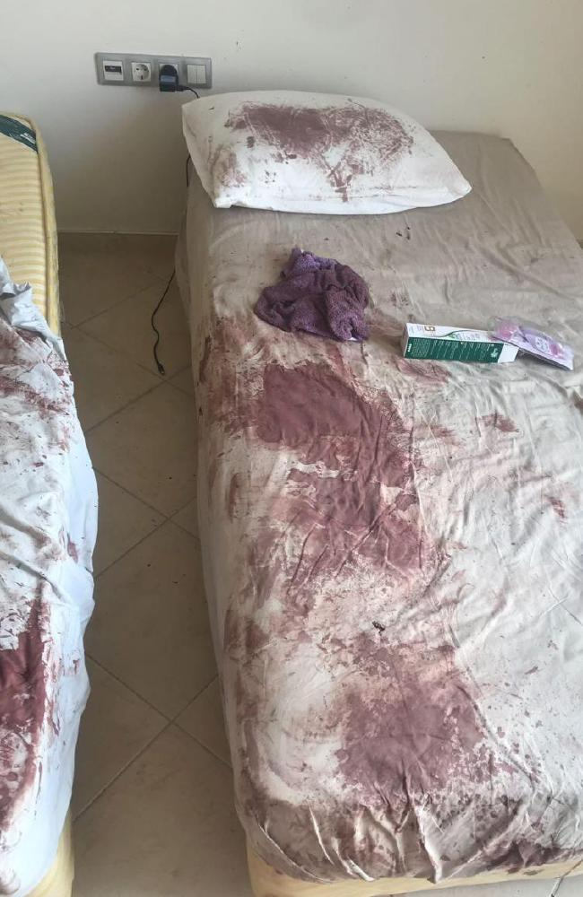 Ms Higginson's hotel room looked like a scene from a horror movie after her brutal bashing. Picture: The Sun