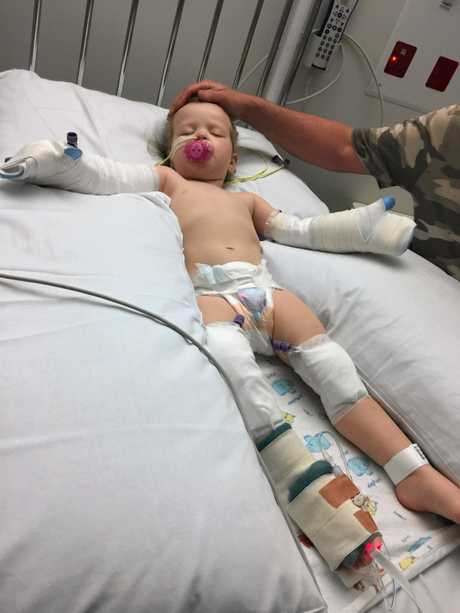 Serenity Parker, 23 months, suffered burns to 9% of her body when she tripped into a campfire at The Glen on Sunday. Her family has thanked those who have supported them since the accident.