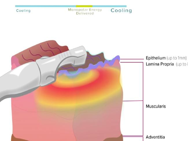 Viveve promotes their laser as safe, as it cools the outer layer of the vagina while targeting deeper tissue. Picture: Viveve.com