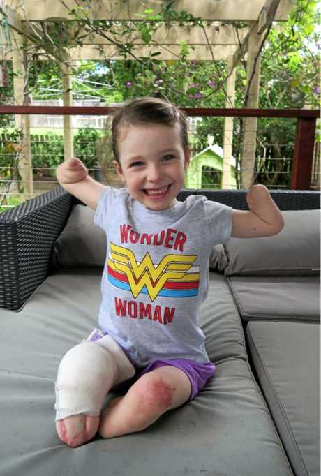 WONDER GIRL: Mia Wilkinson has regain her smile and infectious giggle after last year being diagnosed with Influenza B and Viral Myositis where she had both hands and feet amputated.