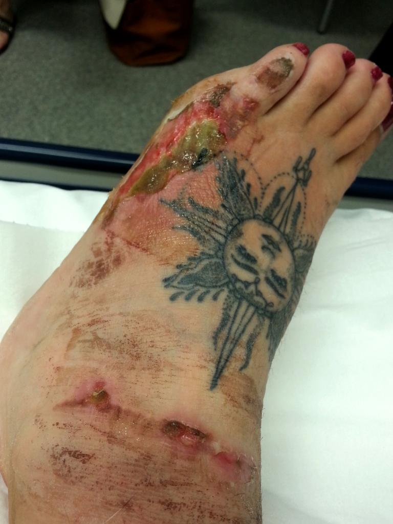 Sharni Hughes, 22, from Carrara, is suing former employer Grill'd after her foot was burnt by hot oil.