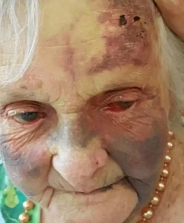 THE CIRCUMSTANCES surrounding an elderly woman's facial injuries sustained during her time at a Coffs Harbour nursing home is under investigation by federal authorities.