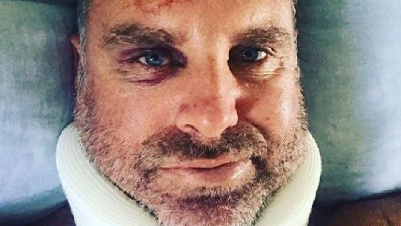 Matthew Hayden after a surfing accident on Stradbroke Island. Picture: haydos359/Instagram