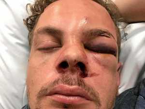 Victim speaks out after brutal CQ pub bashing attack