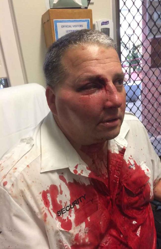 This security officer was bashed at Morriset Hospital in 2016 after asking hooning motorists in the car park to move on.