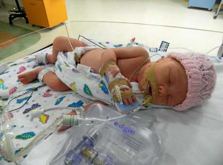 Baby Harper shortly after birth.