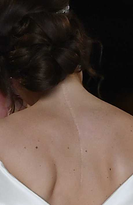 Princess Eugenie's surgery scar, she said she didn't want to cover it up. Picture: Getty