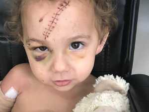 Territorians open hearts for toddler  mauled by dog