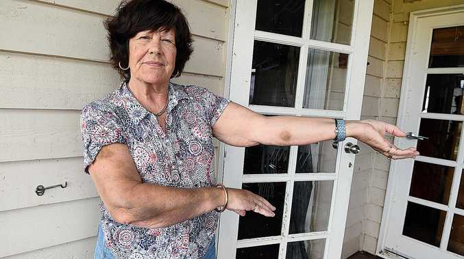 AFTER THE STORM: Yengarie resident Carol Stockley with bruising to her arms after being trapped outside and pelted with hail during last week's storms.