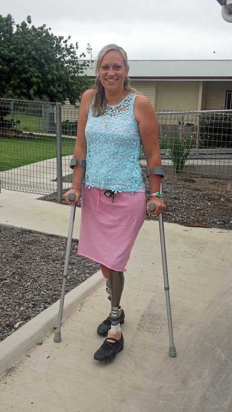 WALKING AGAIN: Shona Muckert has been getting used to her new legs.  Photo Barclay White / South Burnett Times