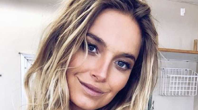 Australian model Bridget Malcolm has opened up about her physical and mental battles. Picture: Instagram