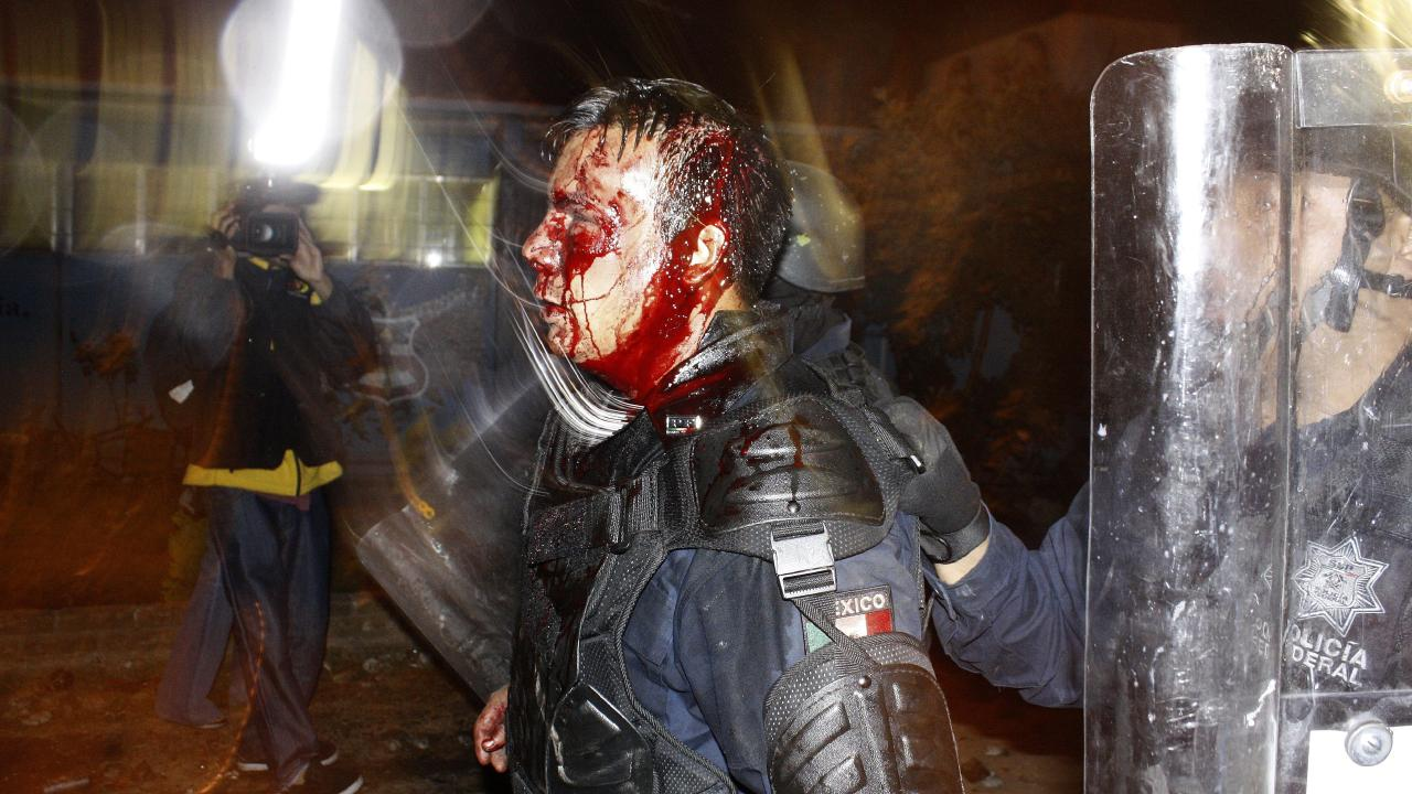The original photo, taken by Gustavo Aguado, showed the bloodied federal police officer injured during an eviction of students in Tiripetio, Mexico. Picture: Gustavo Aguado/AP