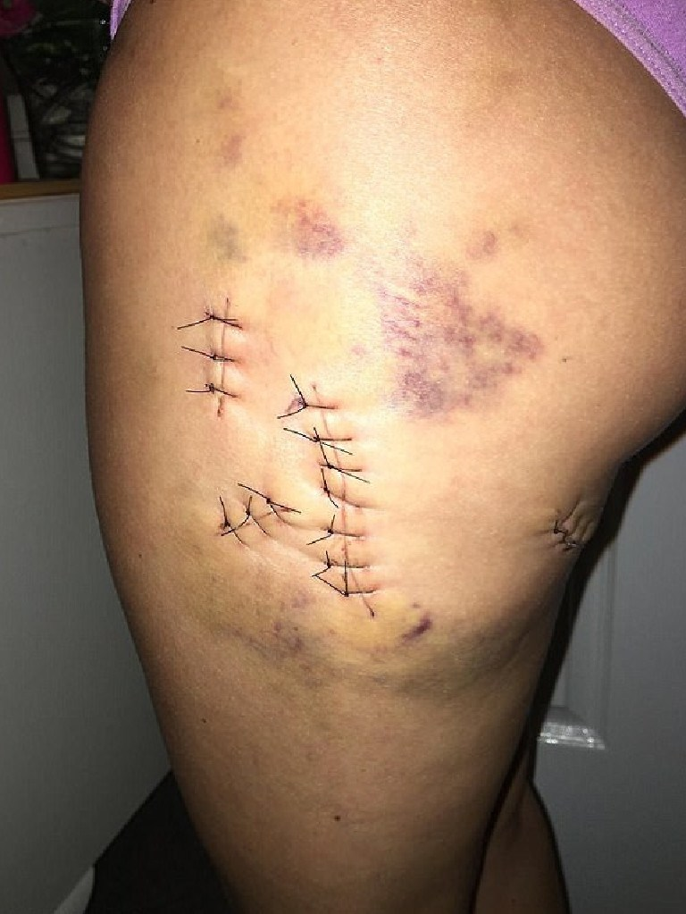 Dr Angela Jay released photos of her injuries.