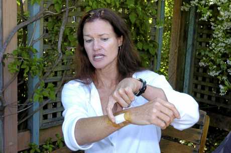 169732  Linda Whitehurst, pictured at Byron Shire Hospital, indicates how she fended offthe great white shark that attacked her 150 metres off Main Beach while she was paddling her surf ski. Photo taken 15 October 2007. Brenden Allen / The Northern Star