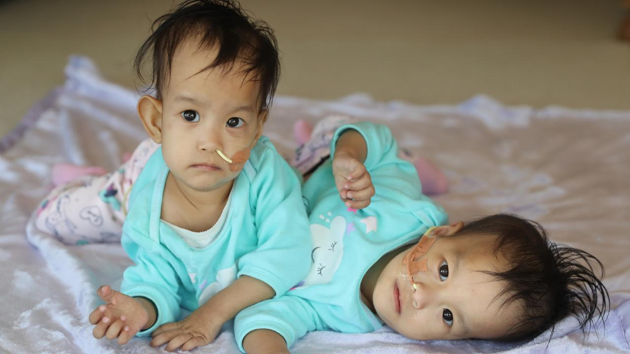 Conjoined Bhutanese twins Nima and Dawa. Picture: Alex Coppel