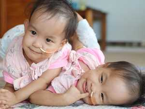 Conjoined twins separated in mammoth surgery