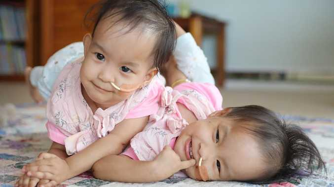 Bhutanese conjoined twins Nima [left] and Dawa [right] before their surgery. Picture: Alex Coppel
