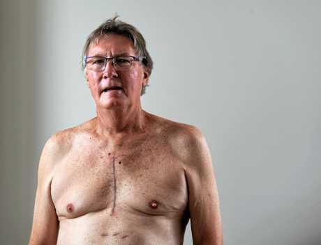 Kym Wickstein had quadruple bypass heart surgery.