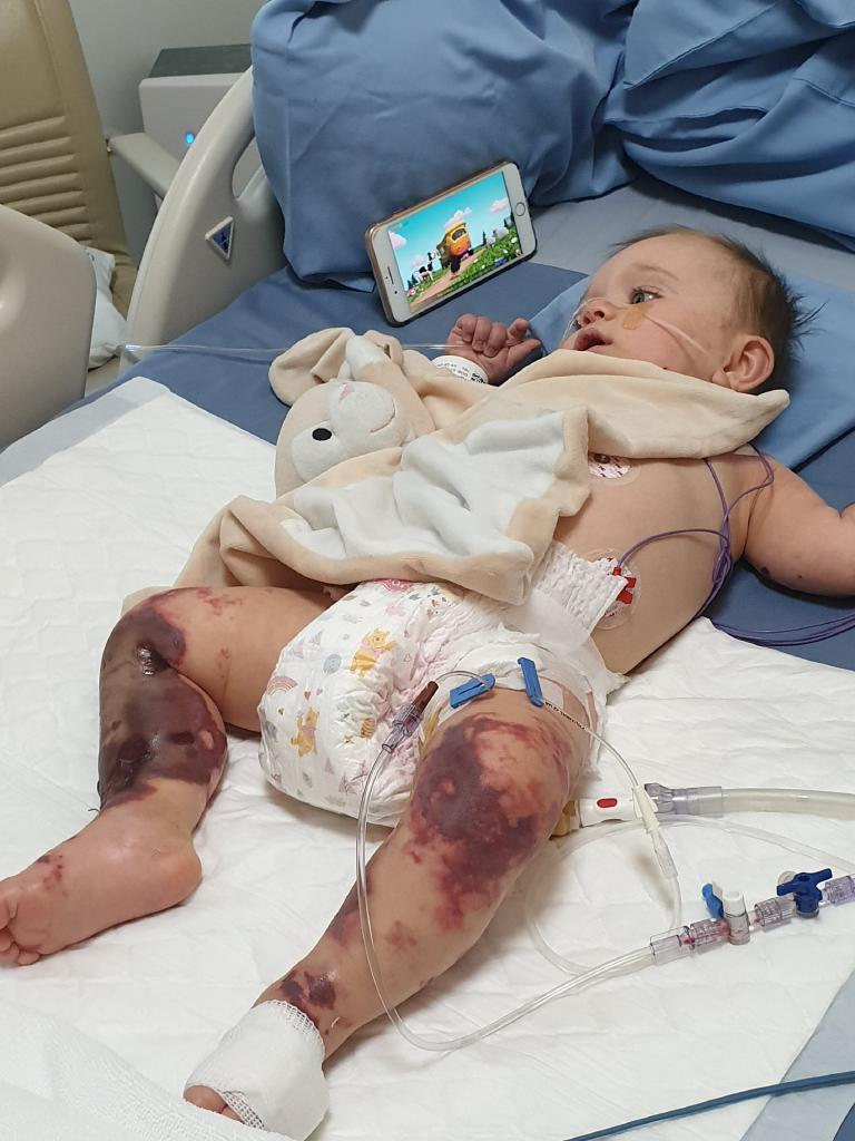 Baby Lilliana Sheridan nearly lost her legs.