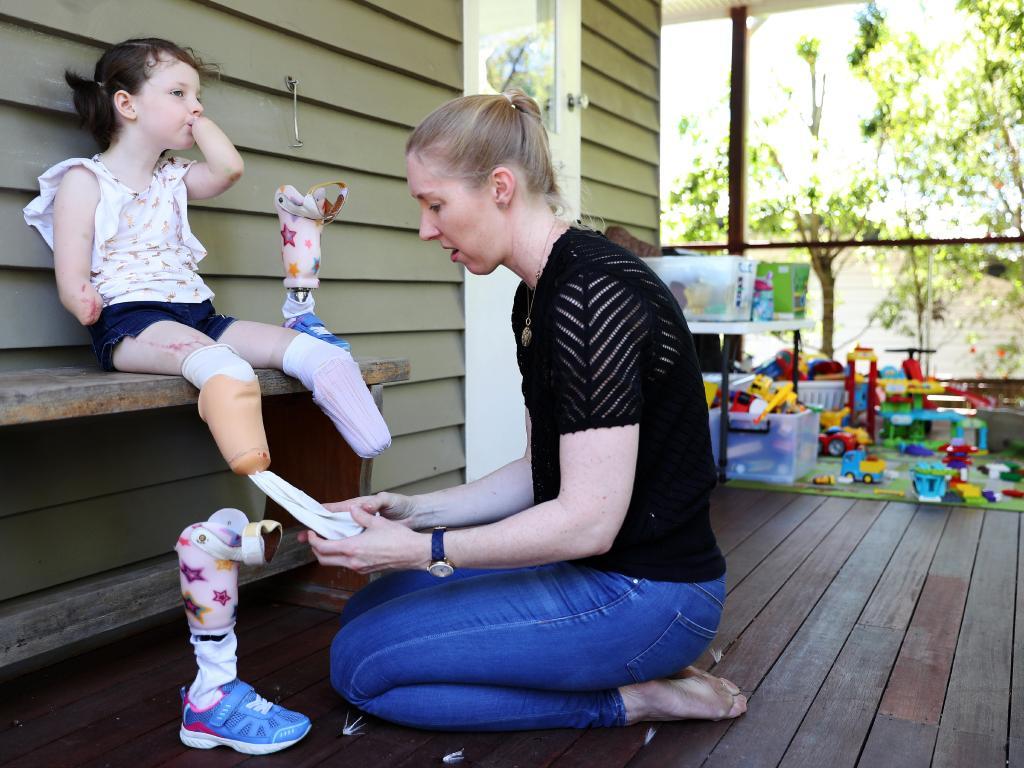 Mia's mum, Amy, puts on her 'uncomfortable' legs before school. Picture: Tara Croser