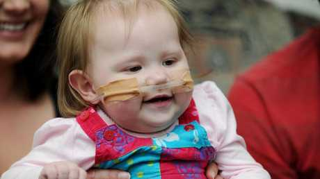 Marley Maurice visits Townsville Hospital on her first birthday after undergoing six open heart surgeries.