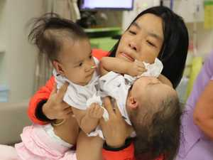Separated twins 'reach for each other'