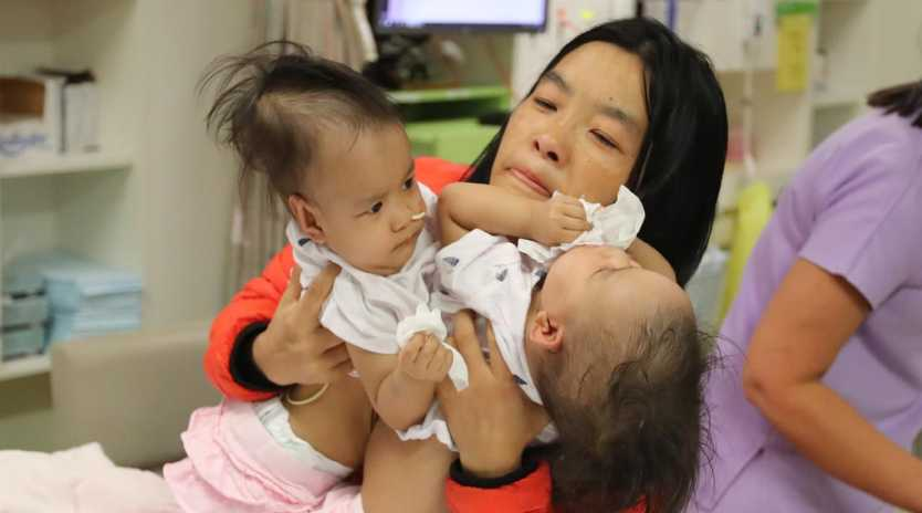 Twins Nima and Dawa before separation surgery at the Royal Children's Hospital in Melbourne on Friday. Photo: Alex Coppel