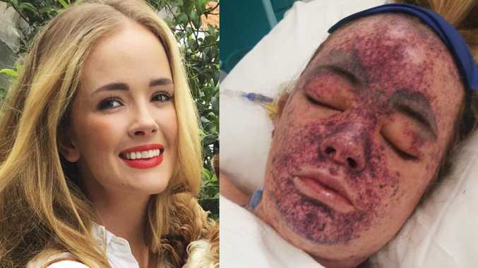 Lily O'Connell nearly lost her life to meningococcal disease. She also received a kidney transplant from her sister.