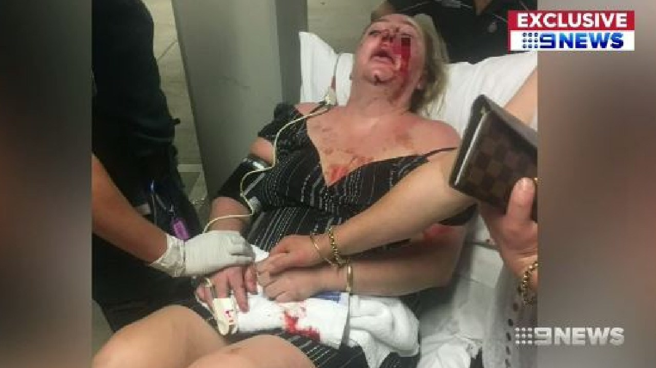 Ms Martin spent several days in hospital following the alleged attack. Picture: Nine News