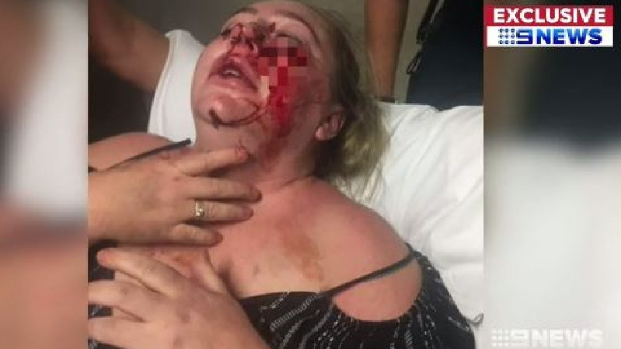 Emma Martin was smoking a cigarette when she was allegedly attacked by a fellow tenant. Picture: Nine News