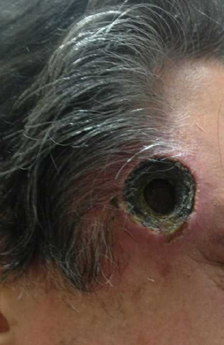 This 55-year-old Queensland man was left with a hole in his head after using black salve.