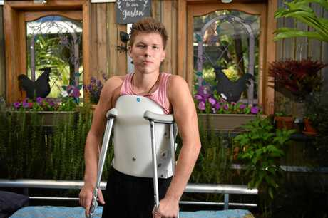 ESTONIAN visitor Ken Urbanik, 22, is lucky to be walking after a horrific fall in North Queensland.