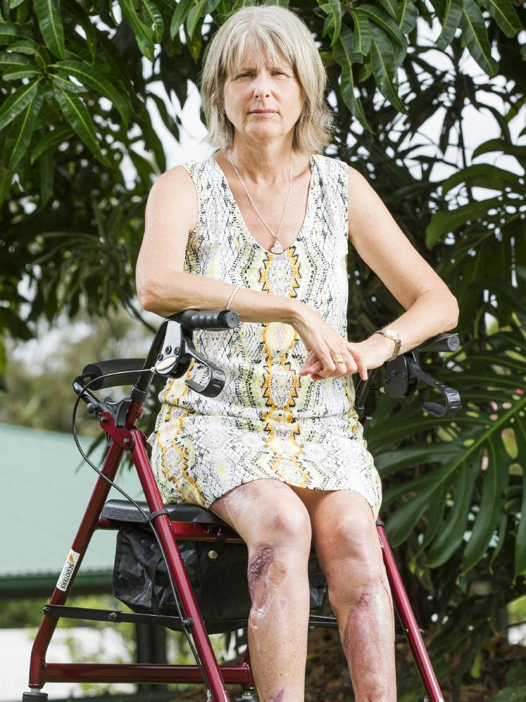 Grandmother Sandy Bampton is still recovering. Picture: Lachie Millard