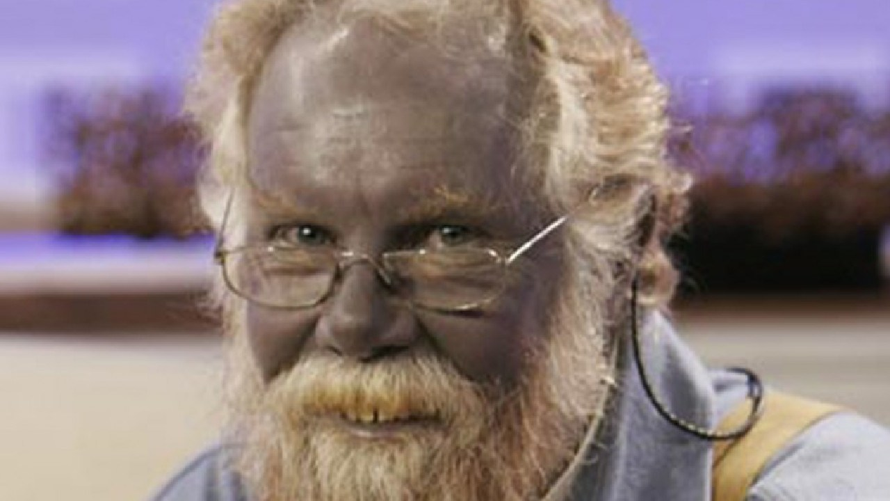 Paul Karason turned blue after taking doses of colloidal silver