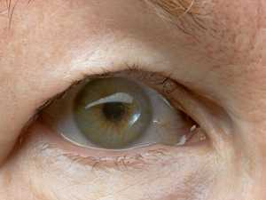 What can you do about droopy eyelids?