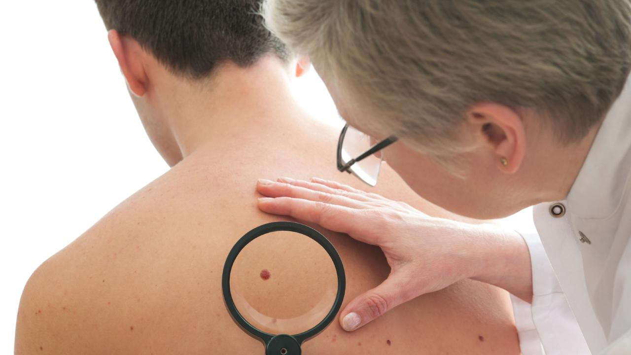 Thirty per cent of Aussies have never had a skin check, but two-in-three will develop skin cancer in their lifetimes.\