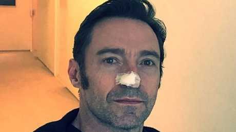 Hugh Jackman has been vocal about the importance of sunscreen after his latest skin cancer treatment. Picture: @RealHughJackman