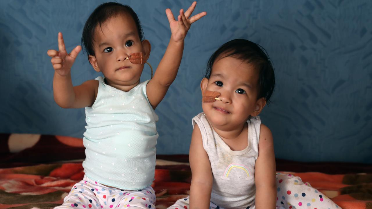 The Bhutanese twins Dawa (left) and Nima (right) are making huge progress after leaving hospital. Picture: Alex Coppel.