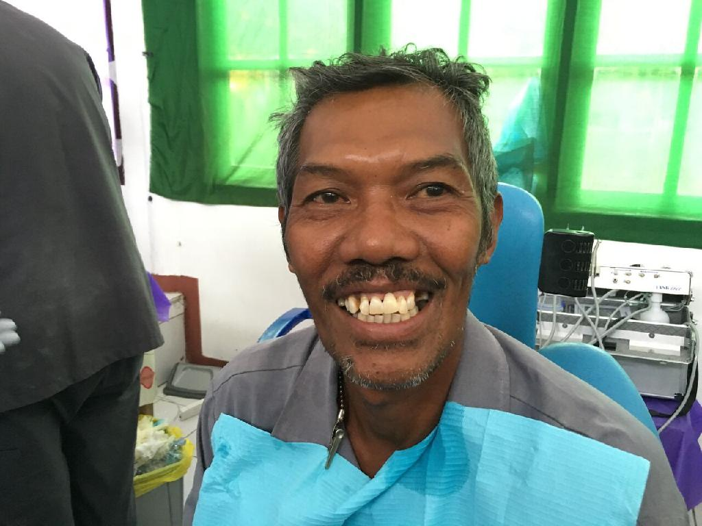AFTER: Petrus Tallo, at Dili's Marcelo 2 School, with his new tooth.